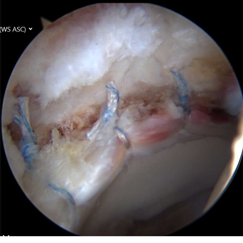Hip Labrum Repair, First View of Completed Repair