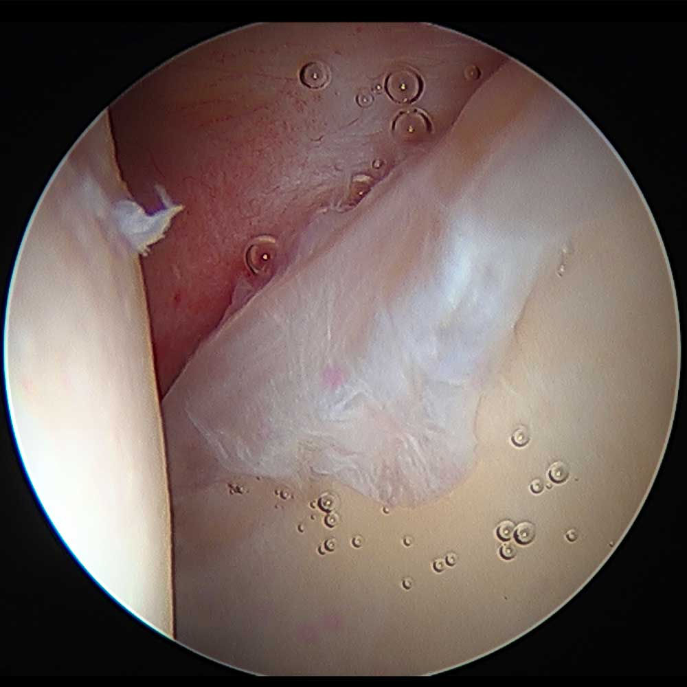 Hip Labrum Tear