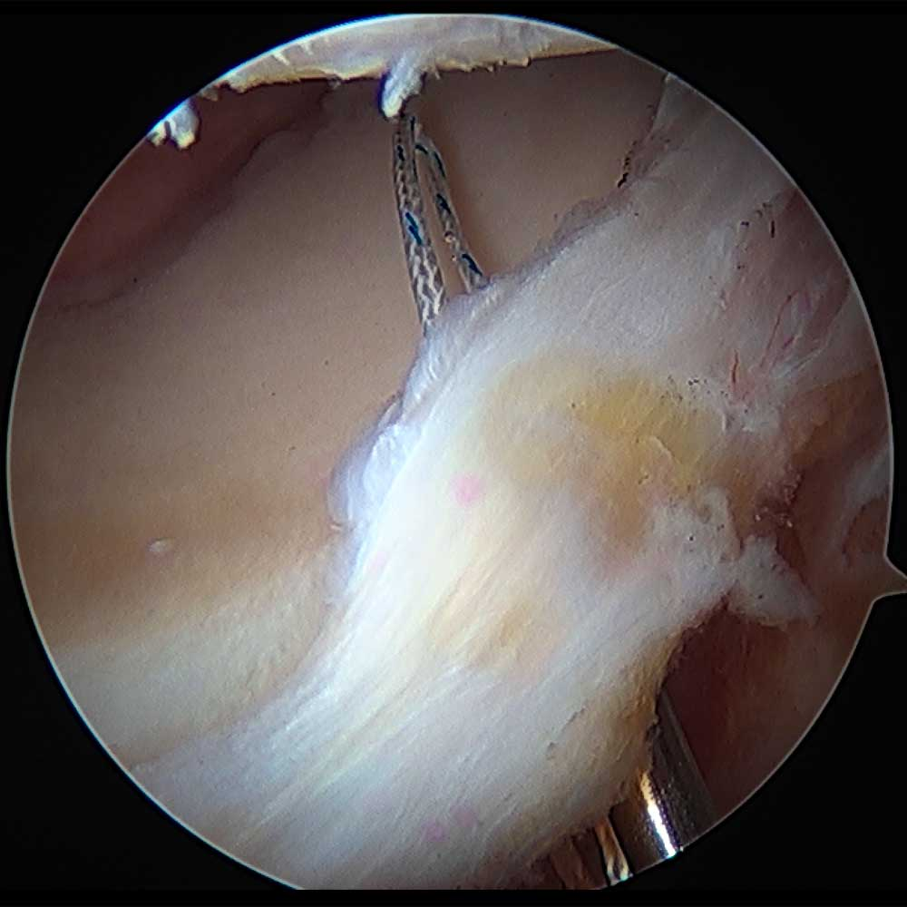Hip Labrum Repair, First Suture